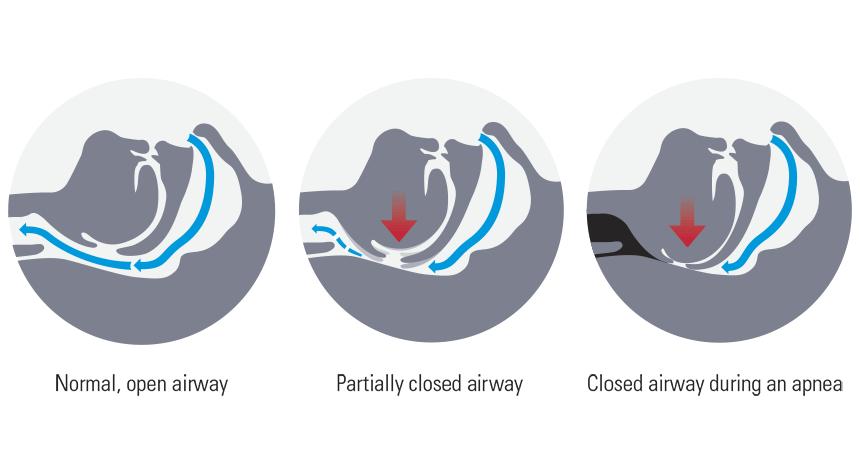 what-is-sleep-apnea-articleimage-image2